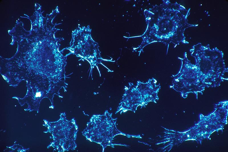 Krebs ,Krebserkrankung ,Krebszellen