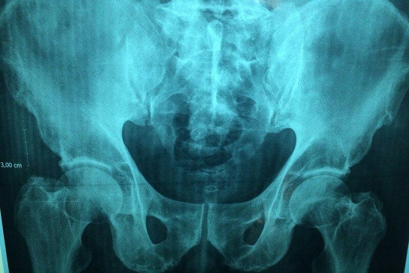 Röntgenbild vom Becken